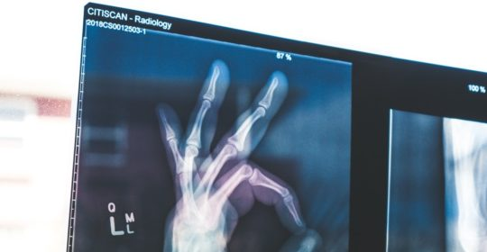 What It's Like to Work in Radiology